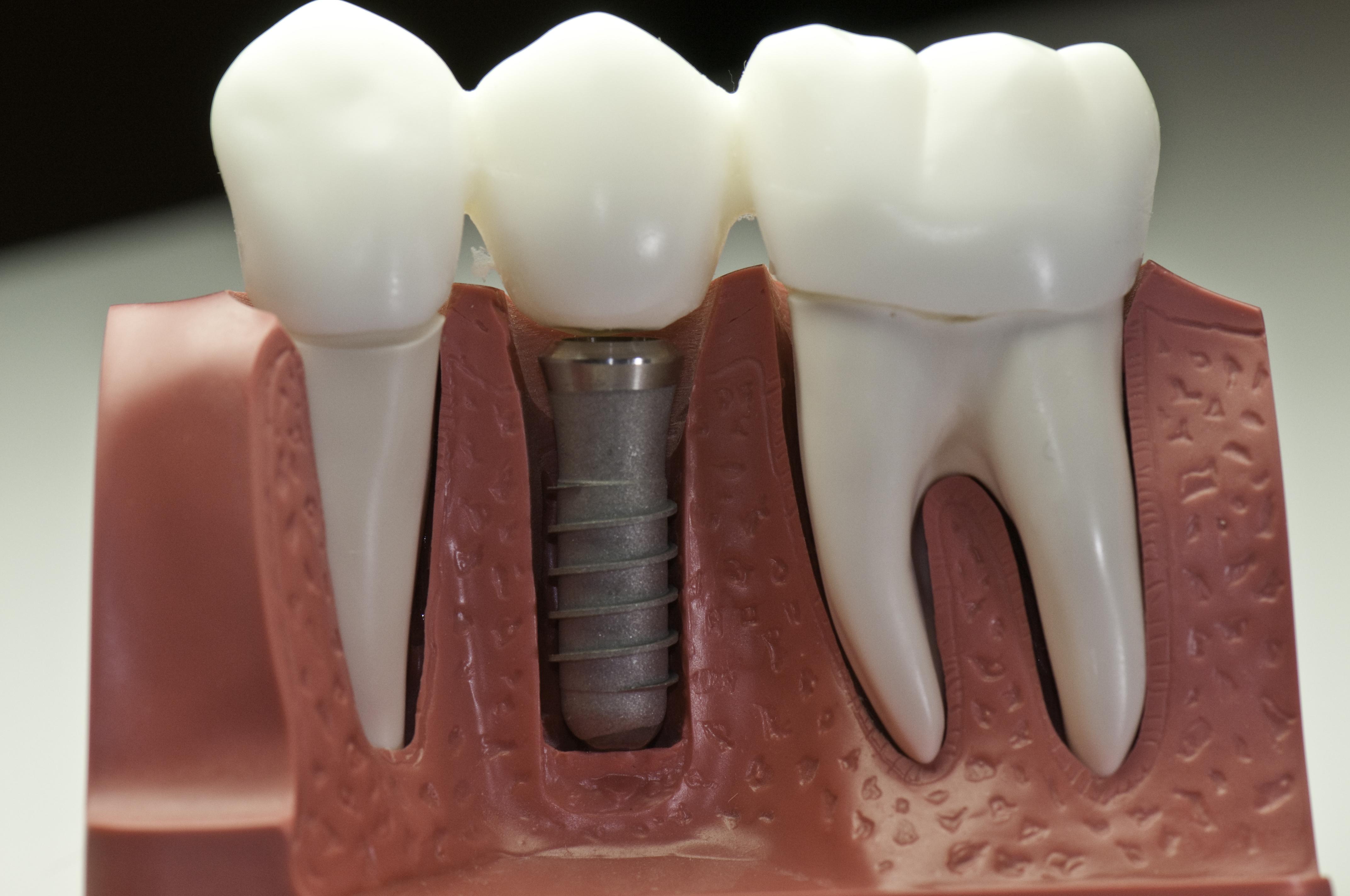 Качественные и недорогие зубные протезы